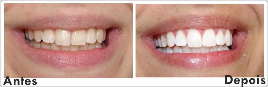 Clareamento Dentario Fashioniscool
